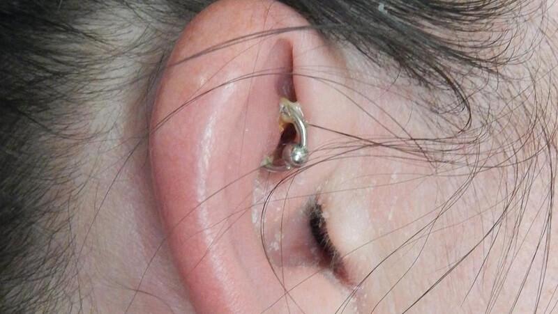 نشانههای عفونت بعد از سوراخ کردن گوش
